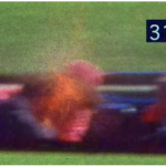 Il terzo proiettile colpisce il presidente Kennedy alla testa