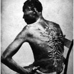 Uno schiavo del Mississippi mostra le sue cicatrici, 1863